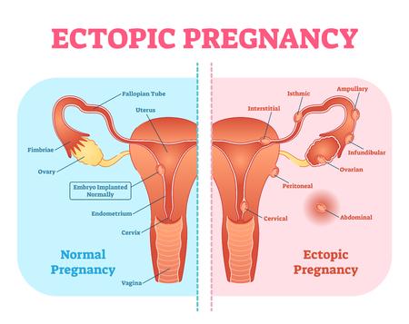Ilustración de Ectopic Pregnancy or Tubal pregnancy medical diagram with female reproductive system and various embryo attachment locations. Gynecological pregnancy information. - Imagen libre de derechos