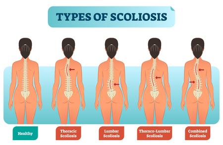 Ilustración de Types of scoliosis medical anatomical vector illustration diagram with spine curvatures compared with healthy back bone. Back view female with labels. - Imagen libre de derechos