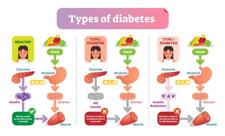 Ilustración de Types of Diabetes simple medical vector illustration scheme. Health care information diagram with Type 1 and Type 2 diabetes. - Imagen libre de derechos