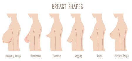 Ilustración de Breast Shape chart -comparing  large, unbalanced,Tuberous,sagging,small and perfect breast. Text font:Blackyard Sans - Imagen libre de derechos