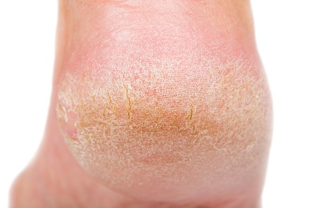 Foto de Close up photo of a person with dry skin on heel - Imagen libre de derechos