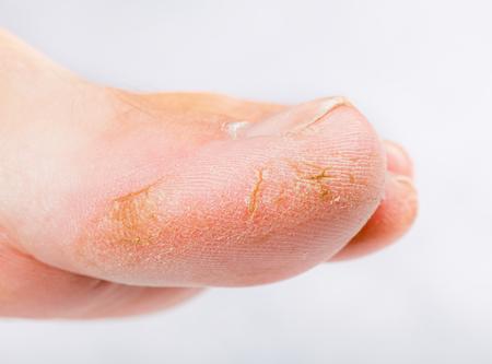 Foto de Close up photo of a person with dry skin on big toe - Imagen libre de derechos