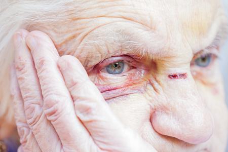 Foto de Close up picture of an injured elderly woman's eyes & face - Imagen libre de derechos
