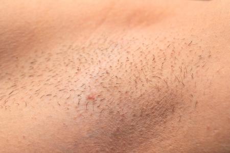 Foto de Close up picture of unshaved armpit, hair growing on human skin - Imagen libre de derechos