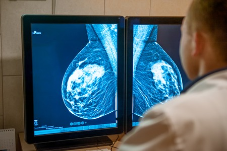 Photo pour Doctor examines mammogram snapshot of breast of female patient on the monitors. Selective focus. - image libre de droit