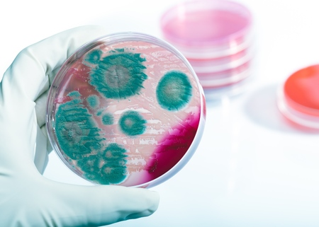 Foto de Petri dish with bacteria Listeria monocytogenes in a hand of scientist - Imagen libre de derechos