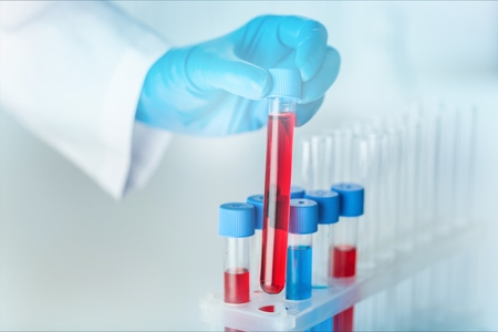 Foto de hands of a lab technician with a tube of blood sample and a rack with other samples / lab technician holding blood tube sample for study - Imagen libre de derechos