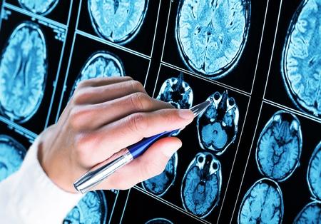 Foto de Doctor pointing with pen to the brain x-ray - Imagen libre de derechos