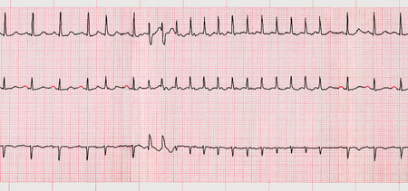 Foto de Emergency Cardiology. ECG with supraventricular arrhythmias and short paroxysm of atrial fibrillation - Imagen libre de derechos