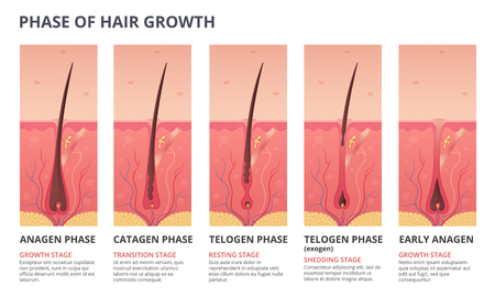 Ilustración de Medical infographic illustrations of hair growth cycle. Vector pictures of human biology. Hair human banner, anatomy root follicle - Imagen libre de derechos