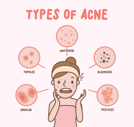 Illustration pour Types of acne with woman cartoon illustration vector on pink background. Beauty concept. - image libre de droit
