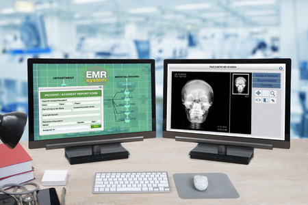 Photo pour Health information and patient x-ray show on two computer monitors on doctor desk with blue background of hospital office. - image libre de droit