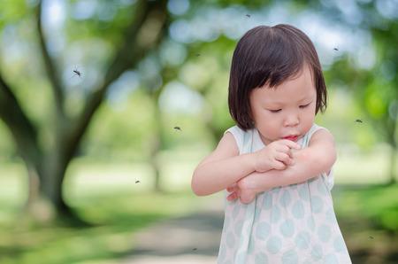 Foto de Little Asian girl has allergies with mosquitoes bite - Imagen libre de derechos