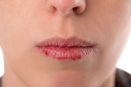 Foto de Closeup woman´s face with brittle and dry lips, concept lip salve and wounds - Imagen libre de derechos