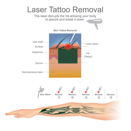 Illustration pour Tattoo removal is most commonly performed using lasers that break down the ink particles in the tattoo. Education infographic. Vector design. - image libre de droit