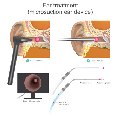 Illustrazione per The Micro suction ear device it is vacuum working system. Doctors use air vacuum pump to suction the ball shape inside ear canal. Illustration. - Immagini Royalty Free