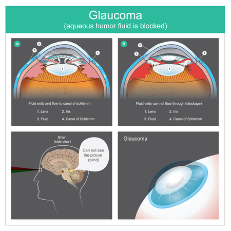 Illustration for Aqueous humour fluid exits and flow to canal of schlemm human eyes.  To see difficult the picture because the fluid exits can not flow through, consequences of obscure visibility of human eye lens. Illustration. - Royalty Free Image