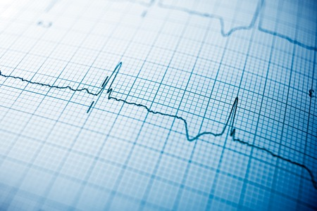 Foto de Close up of an electrocardiogram in paper form. - Imagen libre de derechos