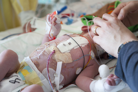 Foto de Baby, child intensive care, heart surgery. - Imagen libre de derechos