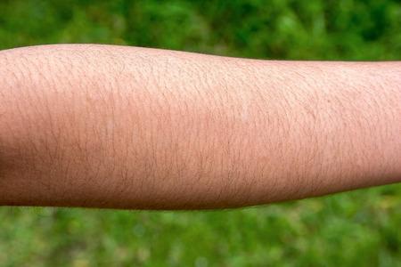 Foto de Female with hairy arm - Imagen libre de derechos