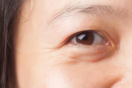 Photo pour Woman wrinkles and under eye bag - image libre de droit