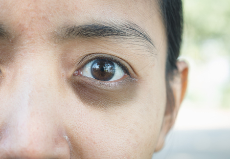 Photo pour Dark circles around eye. - image libre de droit