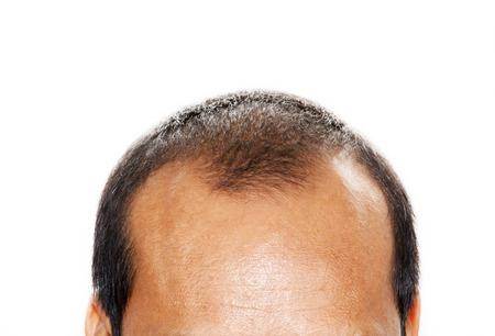 Foto de Male head with hair loss symptoms front side - Imagen libre de derechos