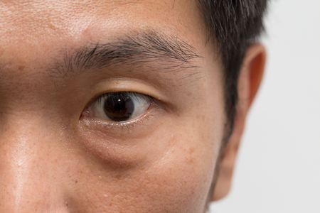 Photo for asian male man face oily skin with big eye bag at the left eye - Royalty Free Image