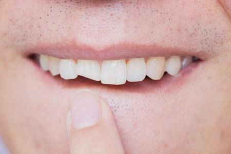 Foto de Male broken teeth damaged cracked front tooth need dentist to fix and repair. - Imagen libre de derechos