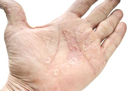 Photo pour Psoriasis, skin disease on the joints of the body - image libre de droit