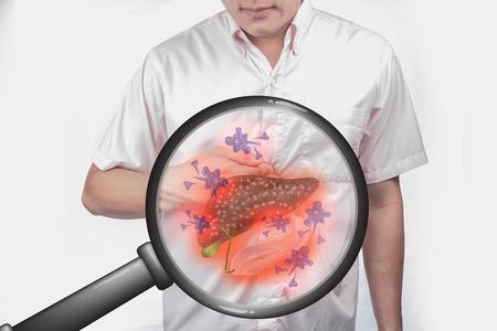 Foto de Body disease and cancer.Use a magnifying glass concept to add interest. - Imagen libre de derechos