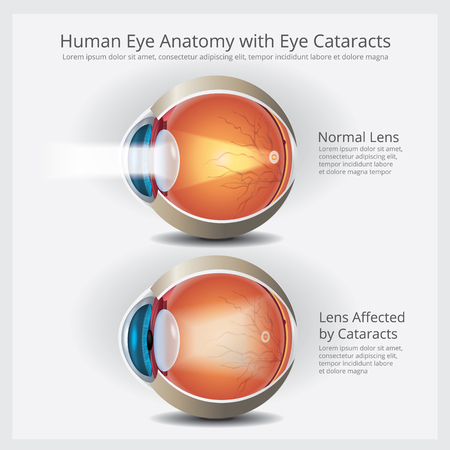 Illustration pour Eye Anatomy with Eye Abnormalities Vector Illustration - image libre de droit