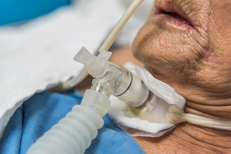 Photo pour Patient asian elder women 80s do tracheostomy use ventilator for breathing help on bed in the hospital. - image libre de droit