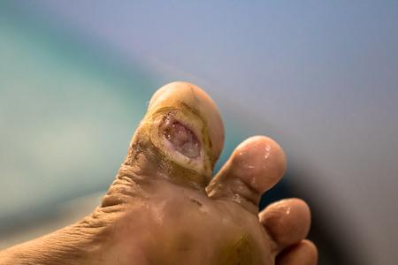 Foto per Foot ulcer, Gangrene at big toe. - Immagine Royalty Free