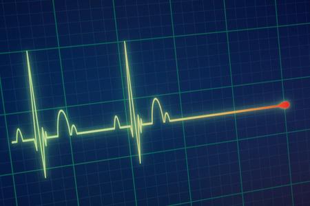Foto de Flatline blip on a medical heart monitor ECG / EKG (electrocardiogram) with blue background - Imagen libre de derechos