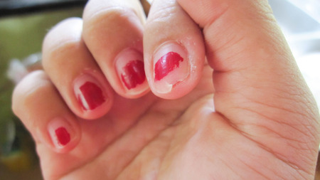 Photo pour Nails ripped that do not care for delicate, no shape and do not have beautiful nail skin, indicates not to take care of both internal and external health. - image libre de droit