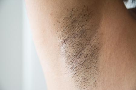Foto de Armpit and armpit hair of Asian women on white background - Imagen libre de derechos
