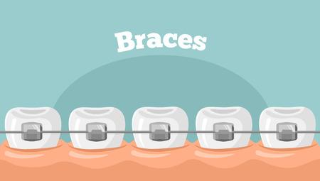 Ilustración de teeth braces flat illustration - Imagen libre de derechos