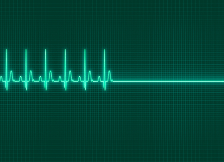 Foto de a electrocardiography exitus illustration in dark screen background - Imagen libre de derechos