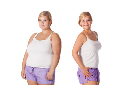 Foto de beautiful fat woman before and after weight loss. rejuvenation. liposuction - Imagen libre de derechos