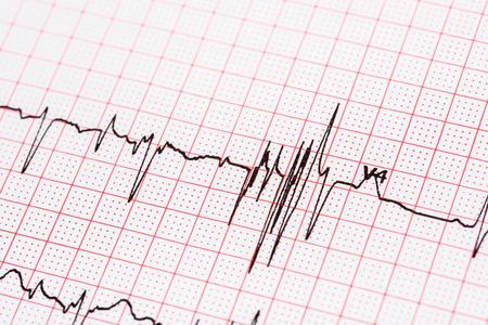 Foto de Extrasystoles On Electrocardiogram Record Paper - Imagen libre de derechos