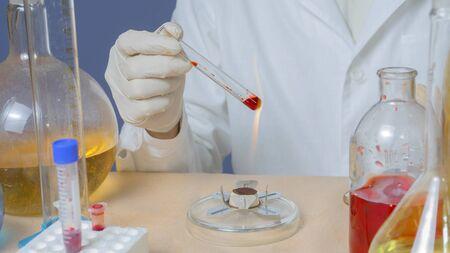 Foto de Medical technician heats in material for analysis. - Imagen libre de derechos