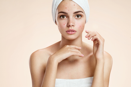 Photo pour photos of ugly problem skin girl on beige background - image libre de droit