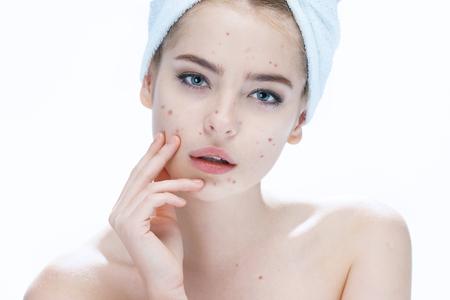 Foto de Ugly problem skin girl. Woman skin care concept. photos of european girl on white background - Imagen libre de derechos