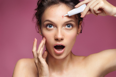 Foto de Young girl in shock of her acne. Photo of ugly girl with problem skin appling treatment cream on pink background. Skin care concept - Imagen libre de derechos