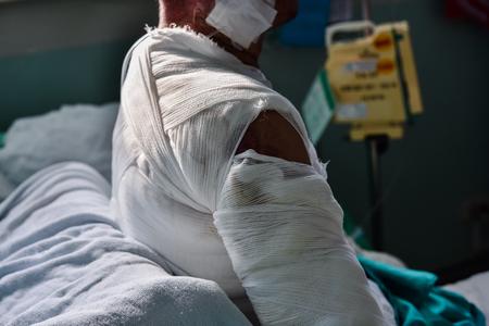 Photo pour Patient with burns in the hospital. - image libre de droit