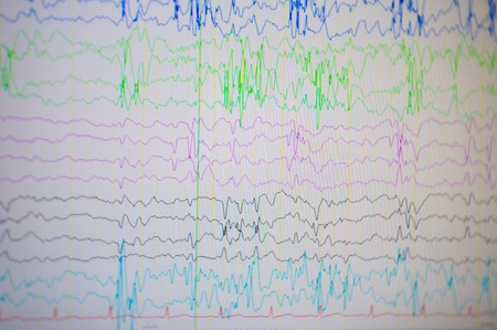 Photo for A computer monitor showing electrical activity of abnormal brain, electroencephalogram,EEG - Royalty Free Image