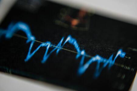 Foto de Echo display screen,Ultrasound screen. Echo-cardiogram, Electrocardiogram. - Imagen libre de derechos
