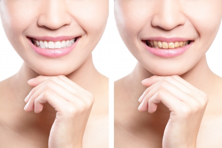 Photo pour woman teeth before and after whitening. asian beauty model - image libre de droit