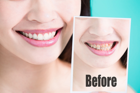 Foto de beauty skincare woman take tooth picture before and after on green background - Imagen libre de derechos